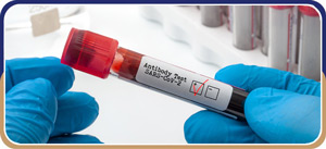 Anti-Body Testing Services Near Me in Delray Beach, FL